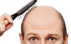 【ハゲ朗報】もっとも効果的な発毛効果が高い薬の飲み合わせ
