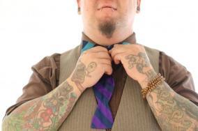 保険適用&短期間で刺青を除去した話